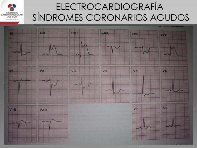 ELECTROCARDIOGRAFÍA SÍNDROMES CORONARIOS AGUDOS IAM de cara lateral Su irrigación está dada compartida por la CX, DX y men...
