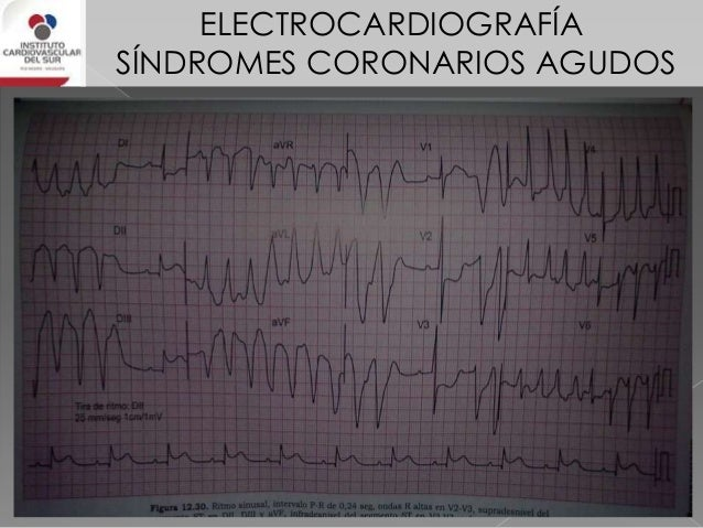 ELECTROCARDIOGRAFÍA SÍNDROMES CORONARIOS AGUDOS IAM DE CARA ANTERIOR En los IAM de cara anterior en las que está involucra...