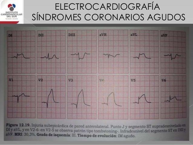 ELECTROCARDIOGRAFÍA SÍNDROMES CORONARIOS AGUDOS OCLUSIÓN DE DA PROXIMAL (antes de 1º septal) • supra ST > 0,25 mV en V1-V4...