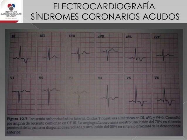 ELECTROCARDIOGRAFÍA SÍNDROMES CORONARIOS AGUDOS Síndrome coronario agudo sin elevación del ST Hallazgos electrocardiográfi...