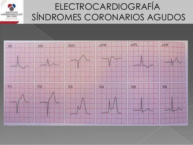 ELECTROCARDIOGRAFÍA SÍNDROMES CORONARIOS AGUDOS IAM apical • supra ST en V1 a V4 (al menos en 2 derivaciones de ellas) • s...