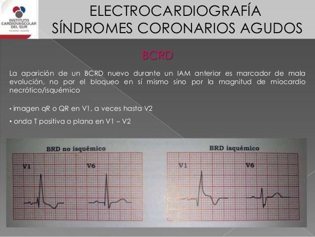 ELECTROCARDIOGRAFÍA SÍNDROMES CORONARIOS AGUDOS BCRI 1) supra ST concordante mayor o igual a 1mm 2) infra ST mayor o igual...