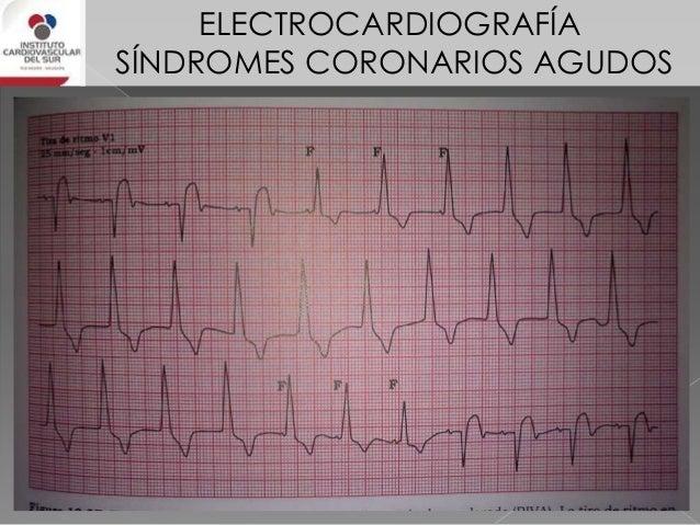 Síndromes coronarios agudos electrocardiograma
