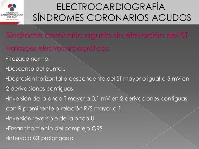 ELECTROCARDIOGRAFÍA SÍNDROMES CORONARIOS AGUDOS El riesgo isquémico se evalúa sumando el desnivel del segmento ST en las d...