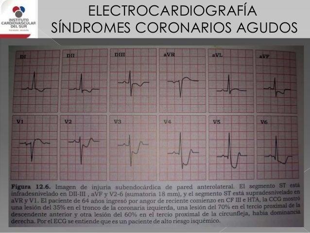 ELECTROCARDIOGRAFÍA SÍNDROMES CORONARIOS AGUDOS Síndrome de Wellens PRESENTACIÓN Trazado normal o casi normal PERÍODO SIN ...