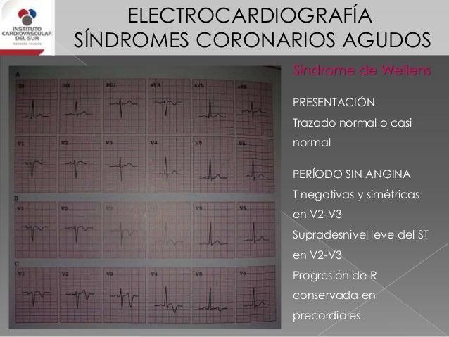 ELECTROCARDIOGRAFÍA SÍNDROMES CORONARIOS AGUDOS INFARTO NO TRANSMURAL O INFARTO NO Q/TIPO T Causado por resultado de la oc...