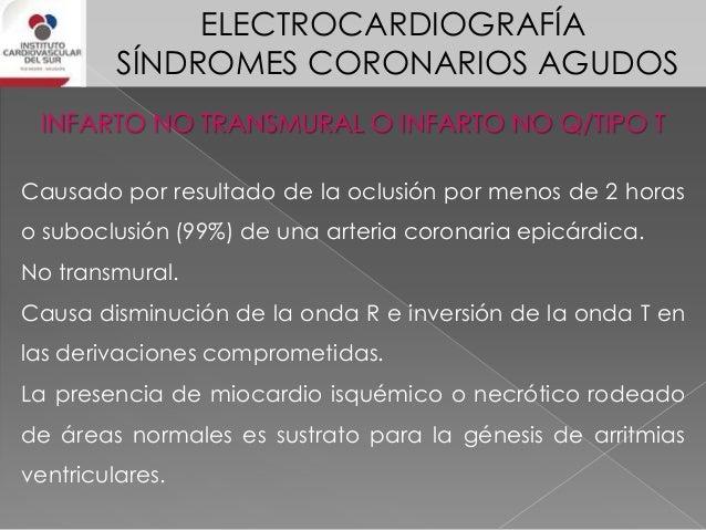 ELECTROCARDIOGRAFÍA SÍNDROMES CORONARIOS AGUDOS SCA con elevación del segmento ST El supradesnivel del ST debe tener las s...