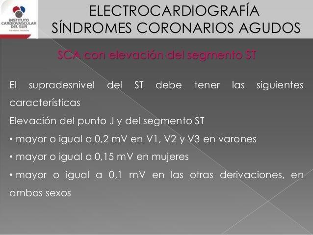 ELECTROCARDIOGRAFÍA SÍNDROMES CORONARIOS AGUDOS SCA con elevación del segmento ST Los infartos pequeños sólo producen camb...