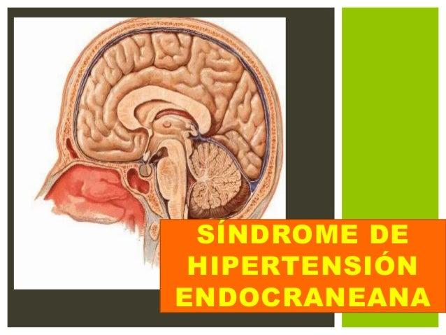Sindrome de Hipertencion Endocraneana