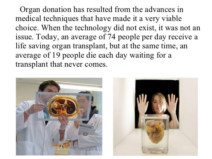 living organ donors medical profession and technological advancement Organ donation and recovery improvement act acknowledges the advances in medical technology that incurred toward living organ donation.