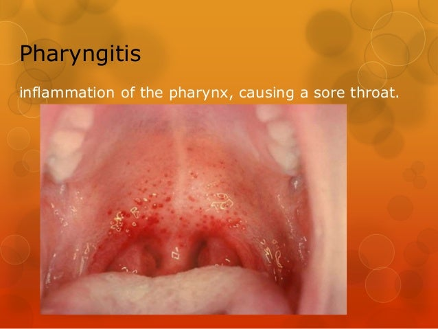 Disease Of The Pharynx