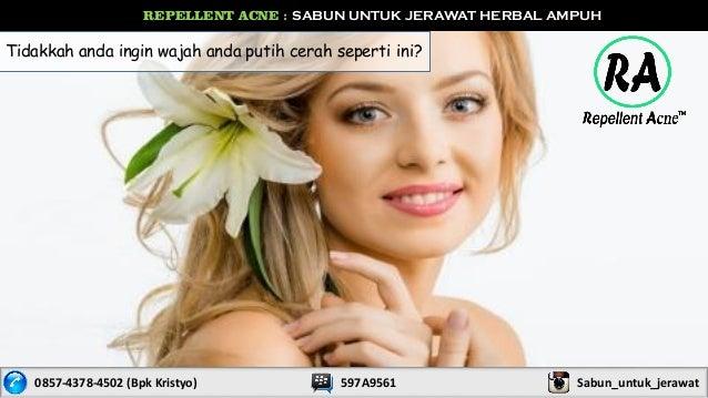 REPELLENT ACNE : SABUN UNTUK JERAWAT HERBAL AMPUH 0857-4378-4502 (Bpk Kristyo) 597A9561 Sabun_untuk_jerawat Tidakkah anda ...