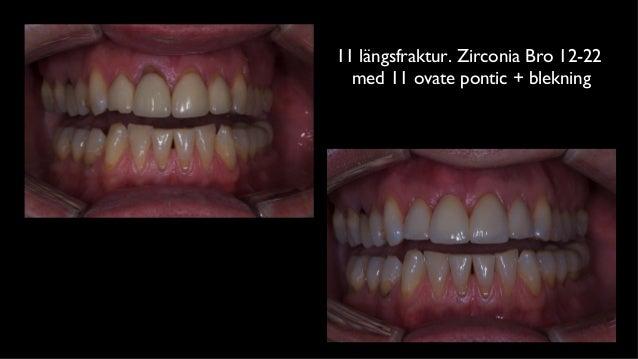 11 längsfraktur. Zirconia Bro 12-22  med 11 ovate pontic + blekning