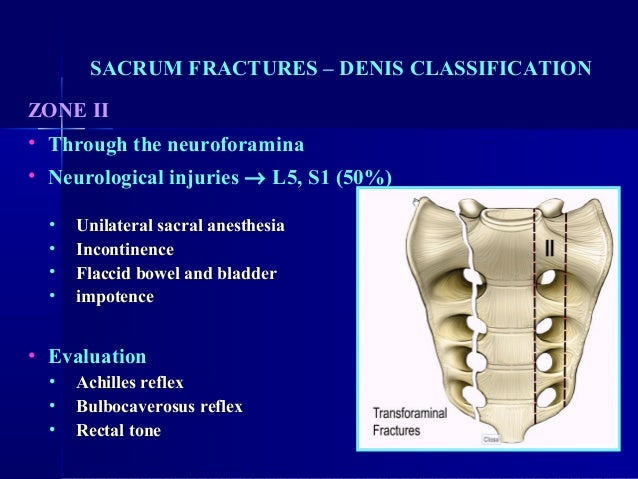 Diagnosis and Management of Sacral Spine Fractures | The Journal ...