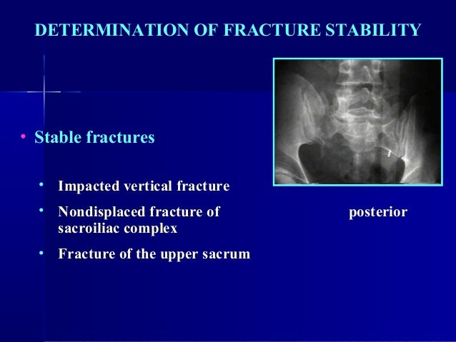 Treatment of medial malleolus fractures with closed reduction and percutaneous internal fixation