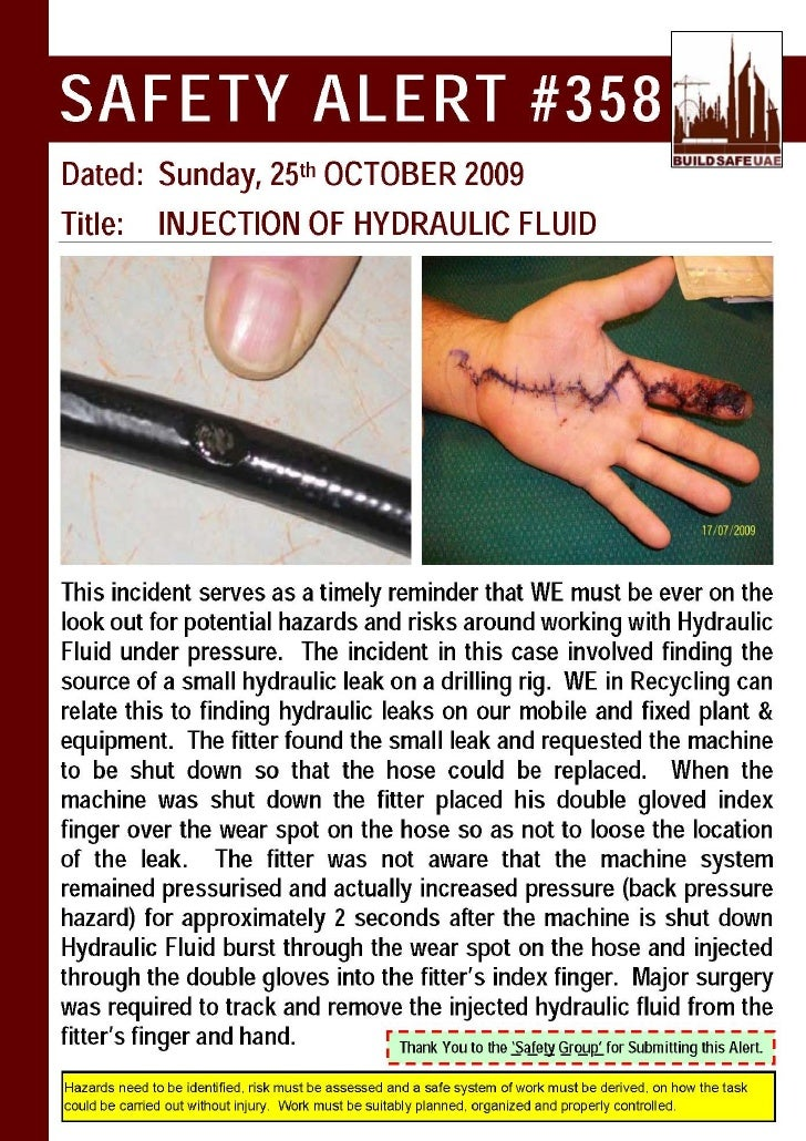 Safety Alert Injection Of Hydraulic Fluid