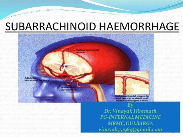 SUBARRACHINOID HAEMORRHAGE 1 By Dr. Vinayak Hiremath PG-INTERNAL MEDICINE MRMC,GULBARGA vinayak551989@gmail.com