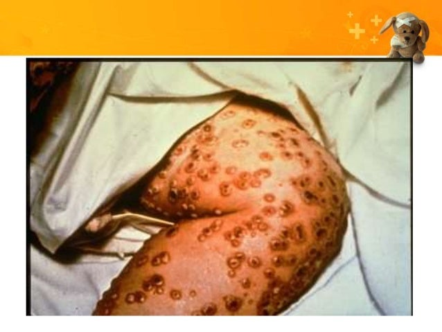Common pediatric skin rash