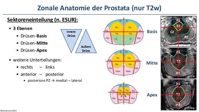 MRT der Prostata – welche Technik, wie geht PI-RADS?