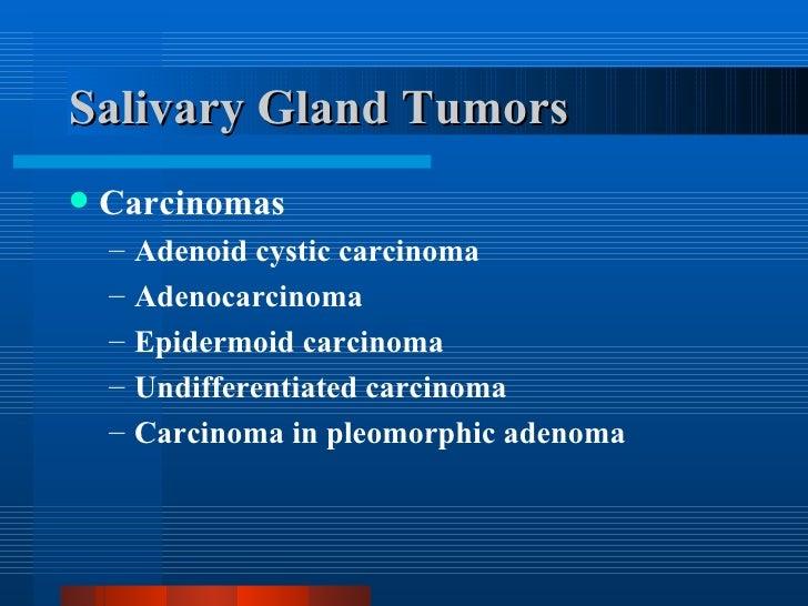 Salivary Gland Tumors <ul><li>Carcinomas </li></ul><ul><ul><li>Adenoid cystic carcinoma </li></ul></ul><ul><ul><li>Adenoca...