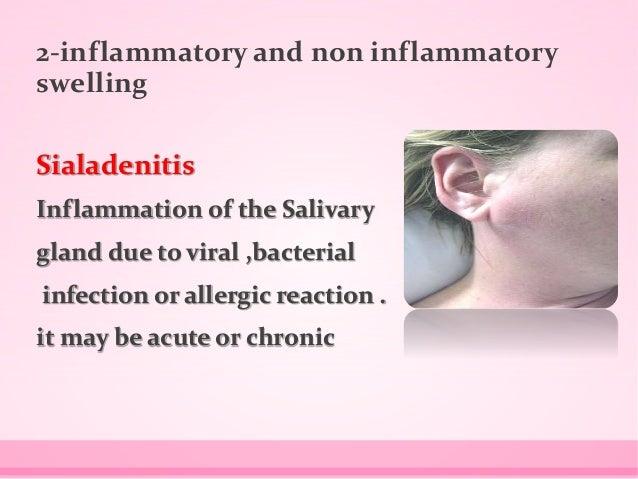 Salivary gland diseases