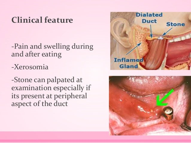 Clinical feature -Pain and swelling during and after eating -Xerosomia -Stone can palpated at examination especially if it...