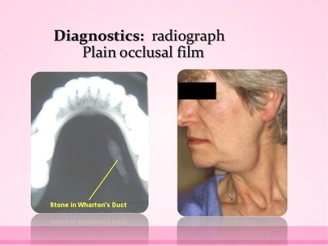 Diagnostics: radiograph Plain occlusal film