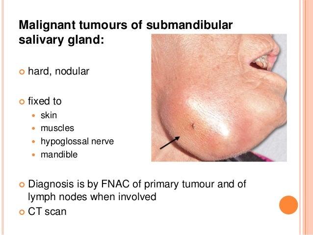 SALIVARY GLAND TUMORS EBOOK DOWNLOAD