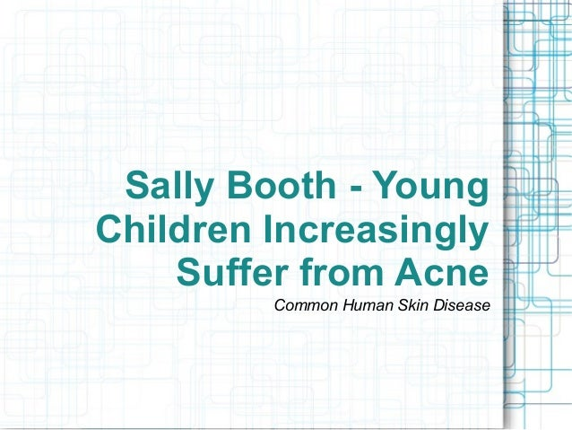 Sally booth young children increasingly suffer from acne 1 638gcb1373382944 sally booth young children increasingly suffer from acne common human skin disease sciox Image collections