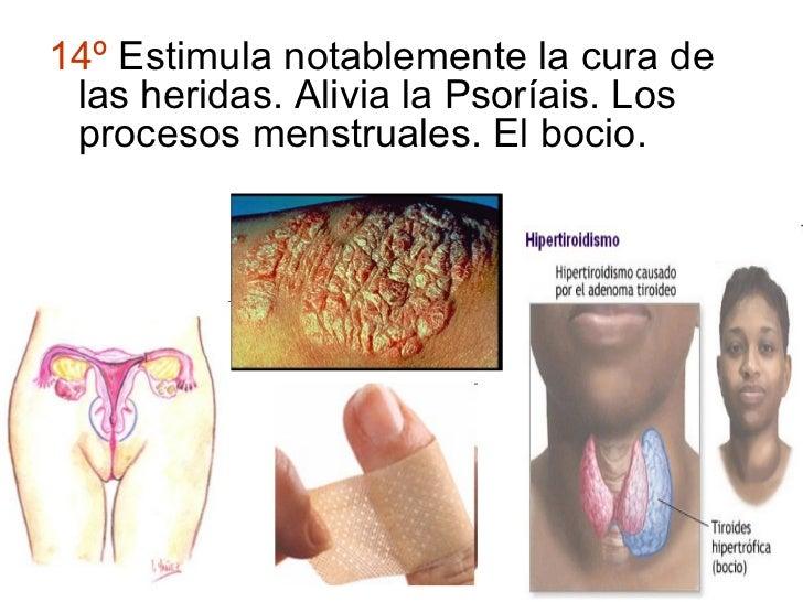 14º Estimula notablemente la cura de las heridas. Alivia la Psoríais. Los procesos menstruales. El bocio.