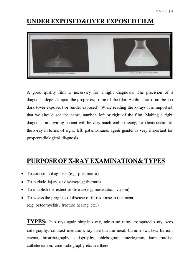 x ray Slide 3