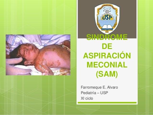 SINDROME DE ASPIRACIÓN MECONIAL (SAM) Farromeque E. Alvaro Pediatría – USP XI ciclo