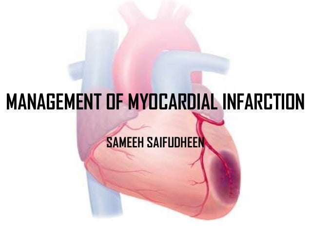 MANAGEMENT OF MYOCARDIAL INFARCTIONSAMEEH SAIFUDHEEN