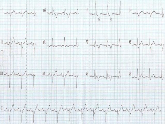 •1-Right bundle branch block with left axis means left anterior hemiblock = bifascicular block. T wave inversion in V1 to ...