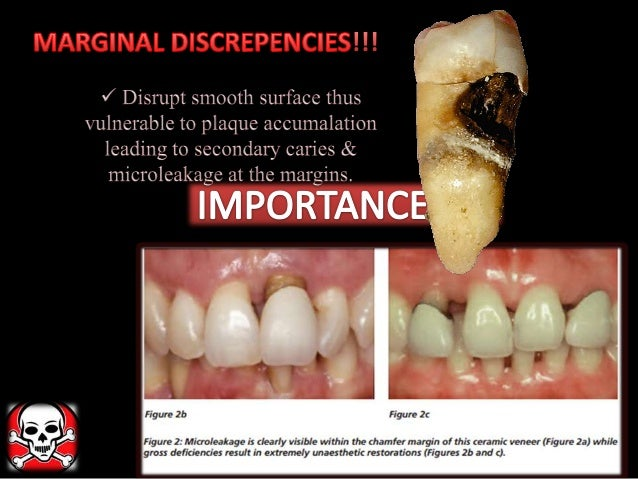 Different Gingival Finish Lines Margins Of Crowns And
