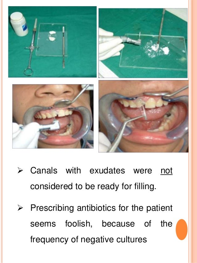  Canals with exudates were not considered to be ready for filling.  Prescribing antibiotics for the patient seems foolis...