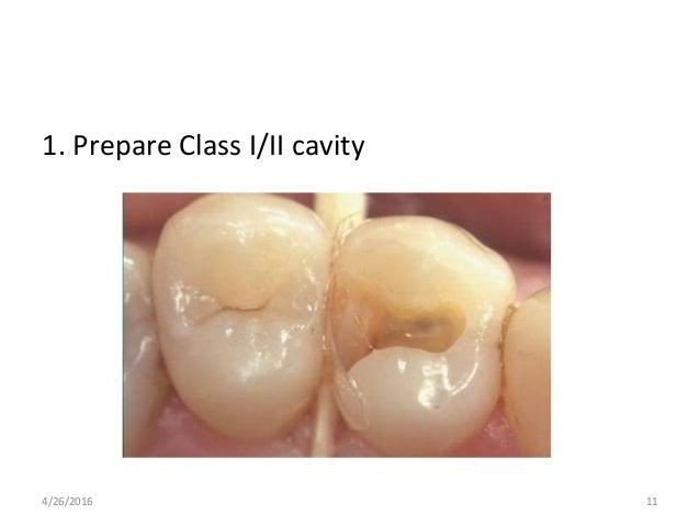 1. Prepare Class I/II cavity 4/26/2016 11