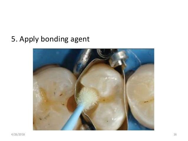 5. Apply bonding agent 4/26/2016 16
