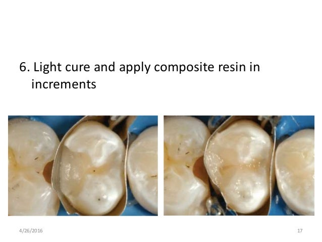 6. Light cure and apply composite resin in increments 4/26/2016 17