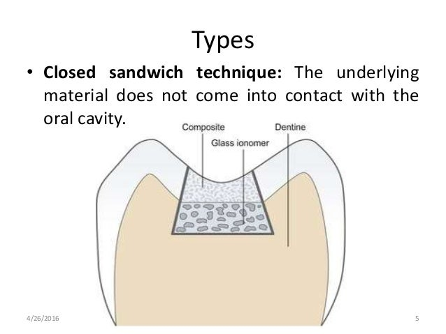 Types • Closed sandwich technique: The underlying material does not come into contact with the oral cavity. 4/26/2016 5