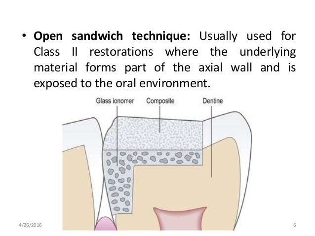 • Open sandwich technique: Usually used for Class II restorations where the underlying material forms part of the axial wa...