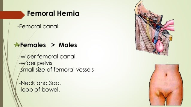 femoral triangle