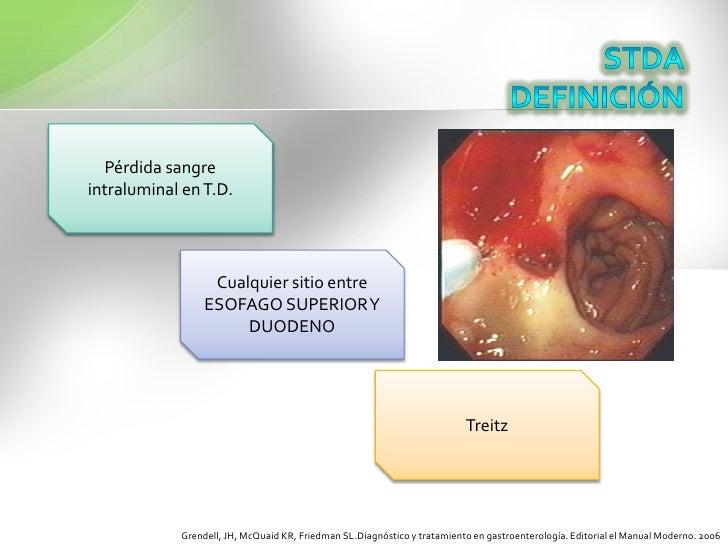 STDADEFINICIÓN<br />Pérdida sangre intraluminal en T.D.<br />Cualquier sitio entre ESOFAGO SUPERIOR Y DUODENO<br />Treitz<...