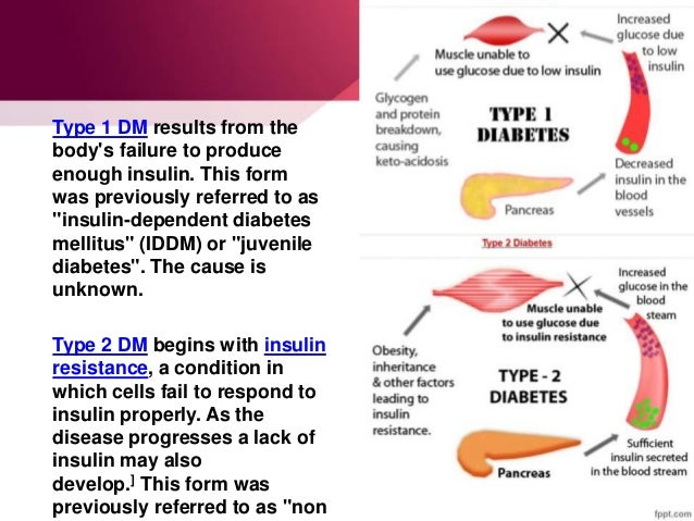 an overview of diabetes mellitus type 1 disease Diabetes mellitus is a group of metabolic diseases characterized by hyperglycemia resulting from defects in insulin secretion, insulin action, or both the chronic.