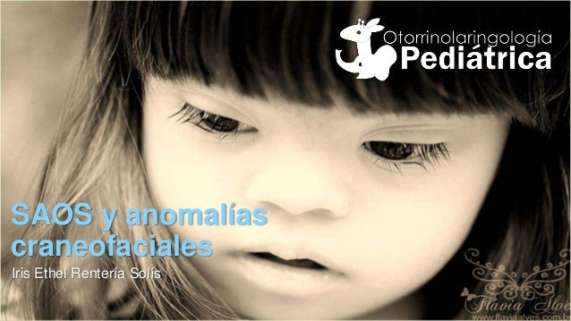 SAOS y anomalías craneofaciales Iris Ethel Rentería Solís