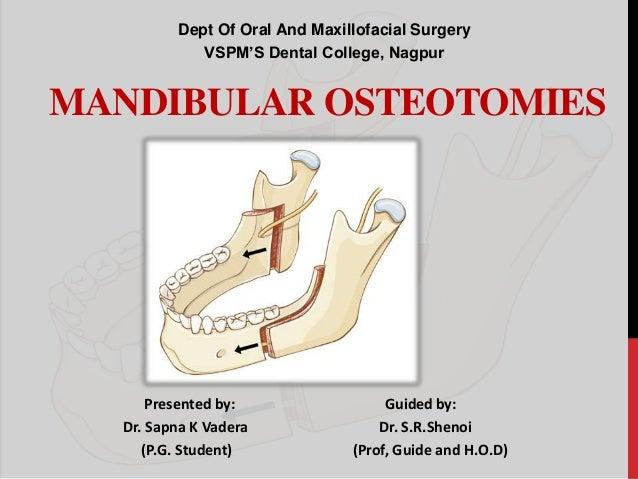 Mandibular osteotomies in orthognathic surgery of Face
