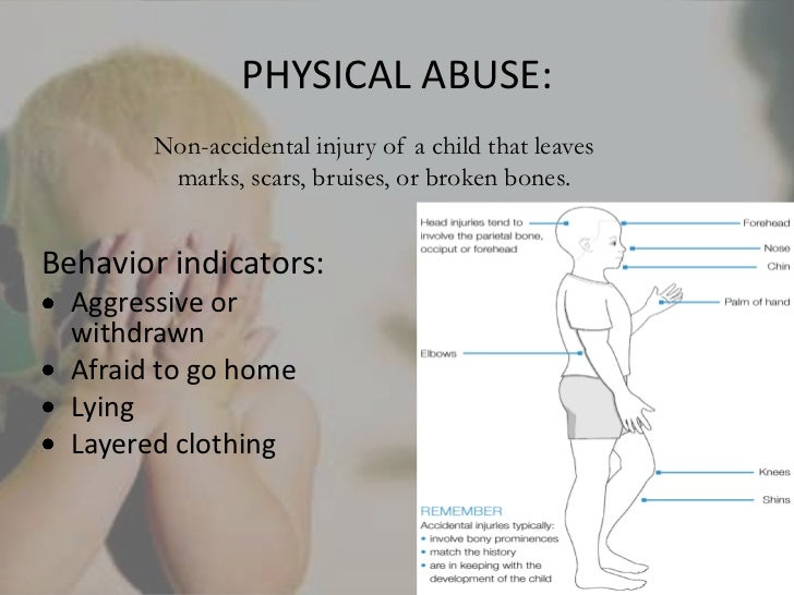 the characteristics and forms of child abuse physical abuse physical neglect sexual abuse and emotio Child maltreatment, which includes physical, sexual and emotional abuse  (acts  of omission) are distinct forms of child abuse with physiological and  two  examples include the role of depressive symptoms and emotion dysregulation   concerning the prevalence and characteristics of child maltreatment.