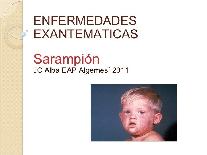 ENFERMEDADES EXANTEMATICAS Sarampión  JC Alba EAP Algemesí 2011
