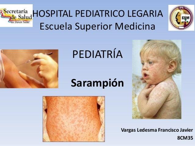 HOSPITAL PEDIATRICO LEGARIAEscuela Superior MedicinaPEDIATRÍASarampiónVargas Ledesma Francisco Javier8CM35