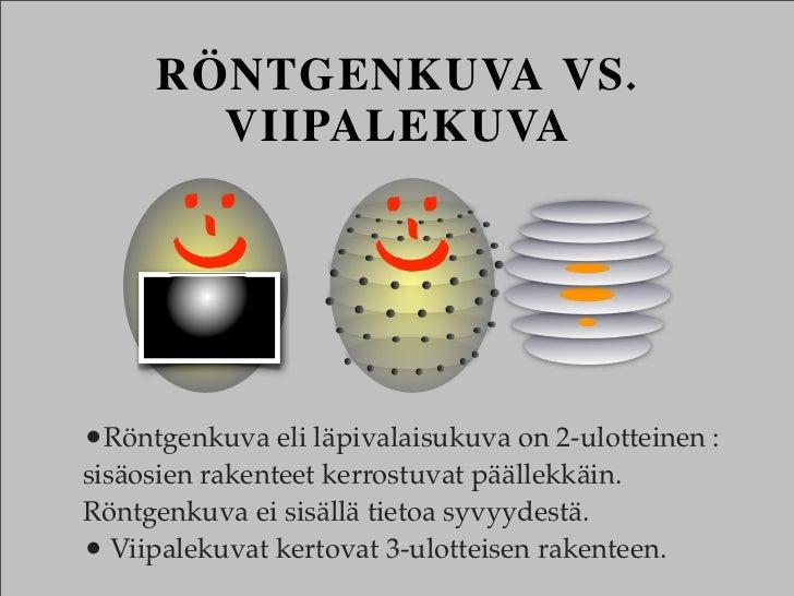 RÖNTGENKUVA VS.       VIIPALEKUVA•Röntgenkuva eli läpivalaisukuva on 2-ulotteinen :sisäosien rakenteet kerrostuvat päällek...